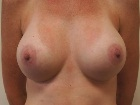 breast-enlargement-before-and-after-photos-2