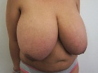 before-and-after-photos-breast-reduction-with-nipple-graft-3