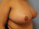 before-and-after-photos-breast-reduction-with-nipple-graft-4
