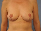 breast-reduction-before-and-after-2