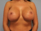 implant-replacement-and-breast-uplift-before-and-after-photos-2