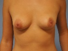 tuberous-breasts-before-and-after-photos-1