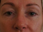 upper-eyelid-surgery-case-study-14920-before-1