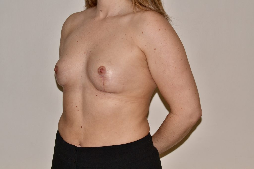 Breast Uplift Surgery with Mr Adrian Richards