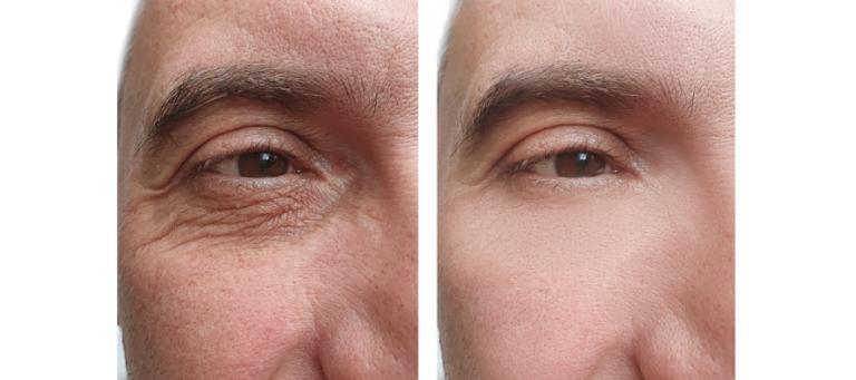 Eye Lid Surgery by Mr Adrian Richards
