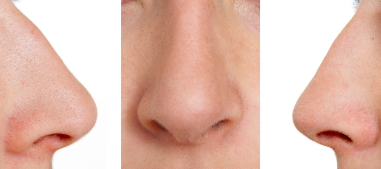 Nose reshaping Surgery by Mr Adrian Richards